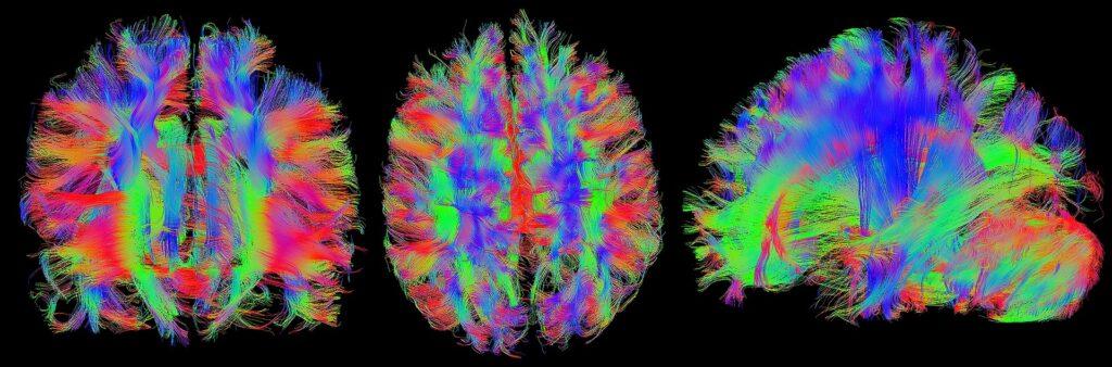 DTI - Neuroscienze forensi