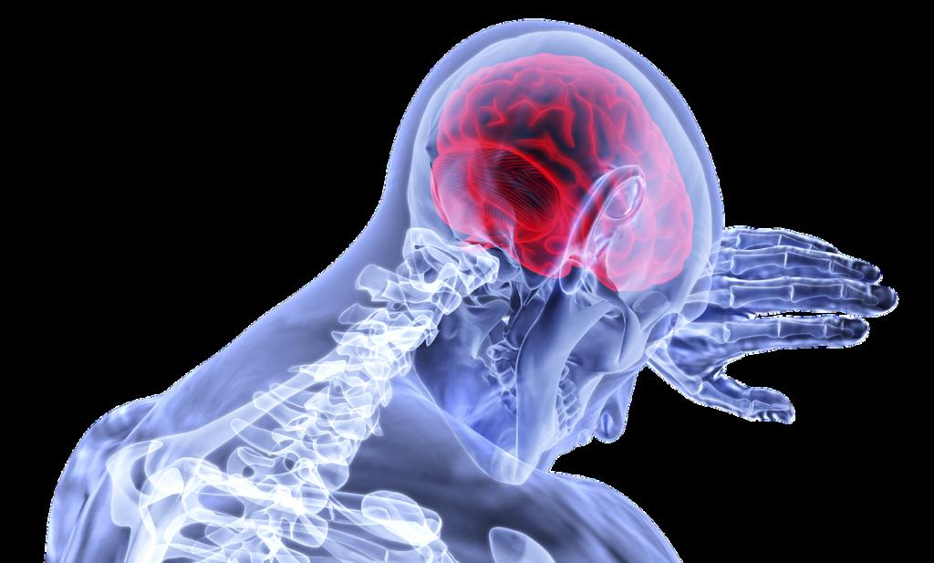 cervello COVID-19
