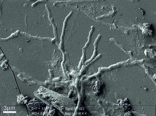 tessuto cerebrale Ercolano Pier Paolo Petrone