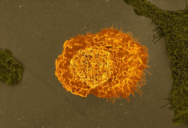 miR-210 macrofagi