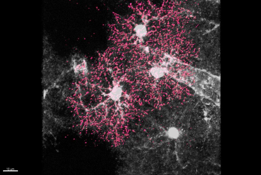 astrociti cellule stellate sviluppo cervello