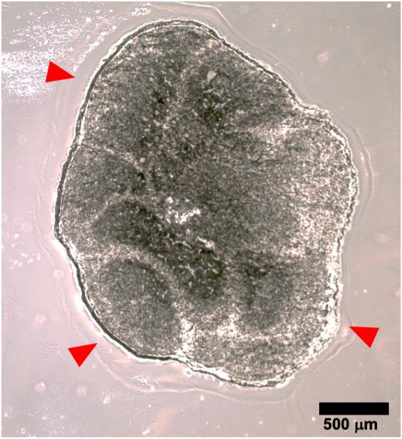 organoidi cerebrali sindrome X fragile